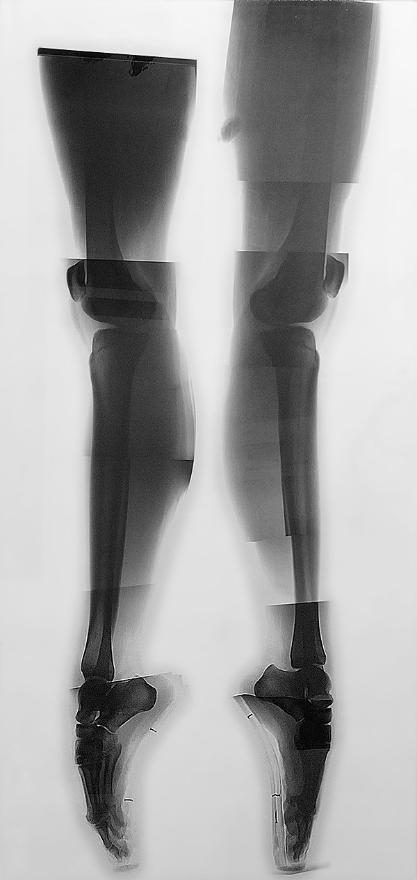 X-Ray photograph of Vaneeesa Blaylock's legs while standing on pointe